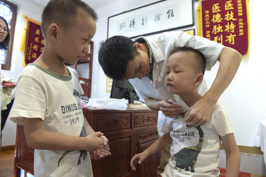 2018年7月17日,浙江省義烏市一家中醫醫院,一個孩子接受針灸治療。