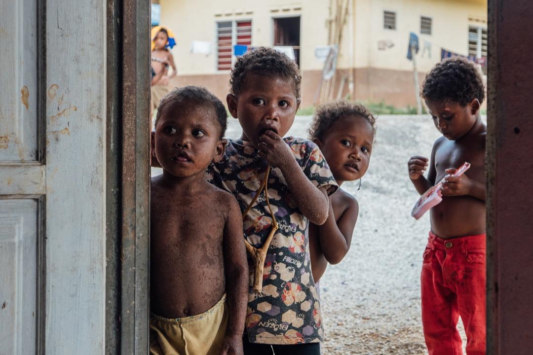 在瓜拉格村,許多小孩患有皮膚病,如疥瘡(接觸性傳染性皮膚病)和疊瓦癬(真菌感染性疾病)。