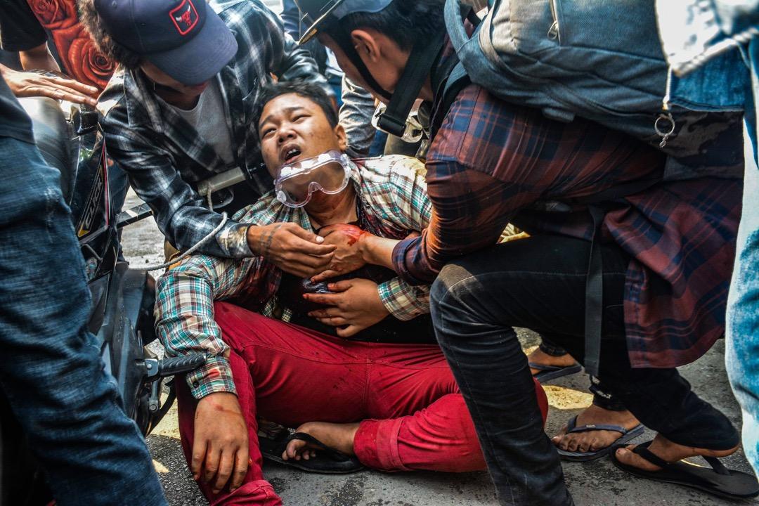 2021年3月27日,緬甸曼德勒,一名反軍政府示威者被安全部隊擊中受傷。