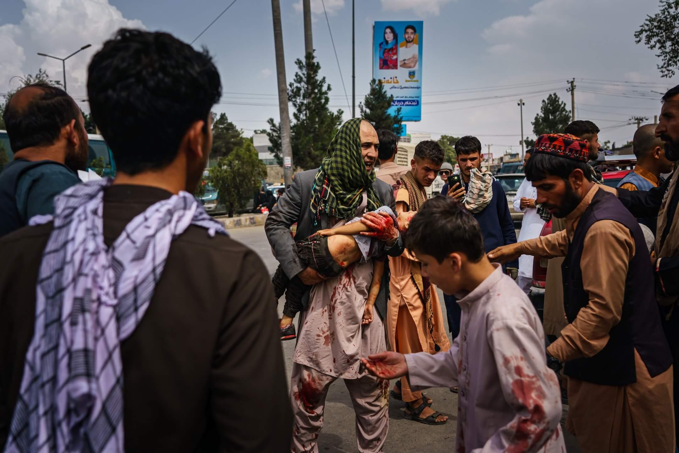 2021年8月17日,阿富汗首都喀布爾,塔利班武裝分子用武力及槍械控制前往機場的市民,多人受傷,有小孩被打至頭破血流。 攝:Marcus Yam/Los Angeles Times/Getty Images