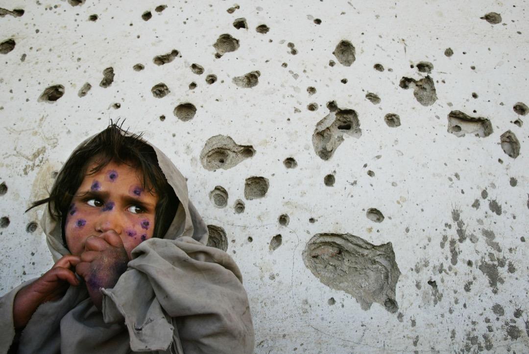 2002年3月1日,阿富汗首都喀布爾,皮膚被細菌感染的7歲女童Mohboba站在滿佈彈孔的牆壁前。