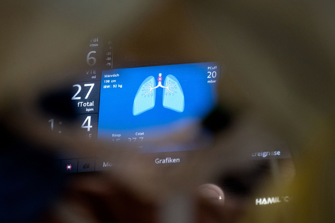 德國巴登-符騰堡州一所醫院的深切治療部內,一名2019冠狀病毒患者插上的呼吸機,螢幕顯示著患者肺部功能的指數。